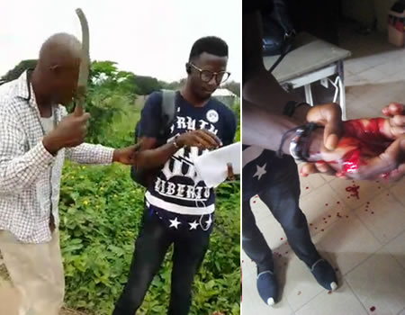 Man in police custody over knife attack on EKEDC staff